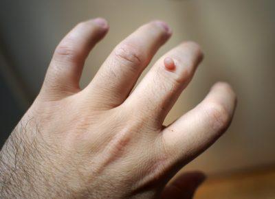 Warts Skin Tags